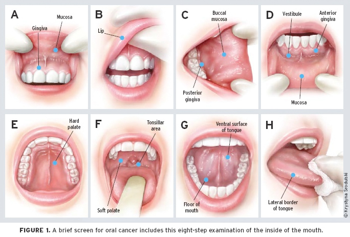 cure hpv in mouth)
