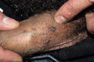 Warts on penile skin treatment