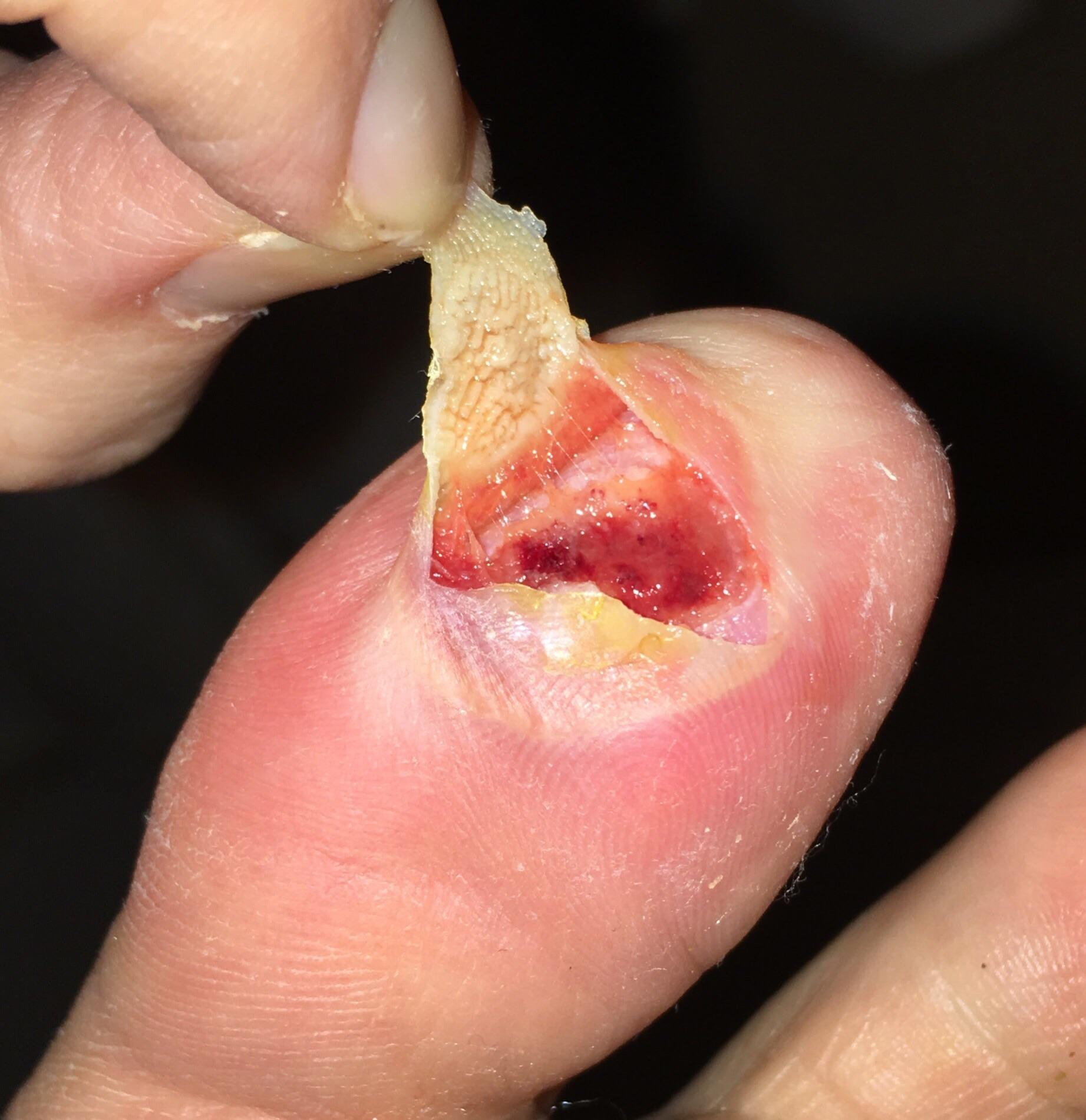 Wart treatment with cantharidin. What are Warts? (Verruca Vulgaris) treatment wart ear