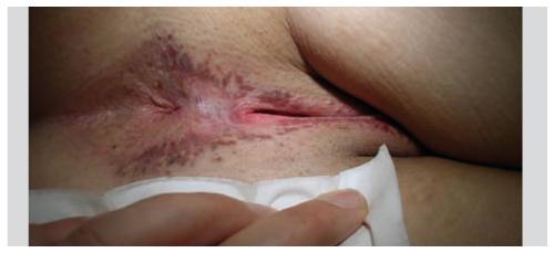 hpv virus chez l homme)
