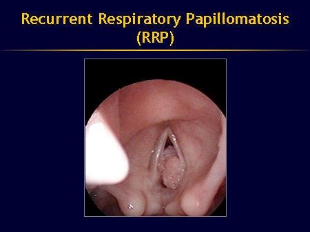 papillomavirus respiratory