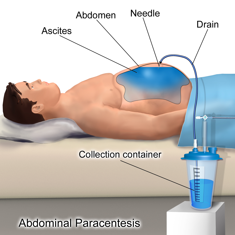 peritoneal cancer icd 10)
