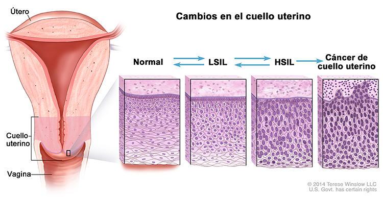 Papanicolaou celulas anormales, #cancercervical Papanicolaou anormal y vph positivo