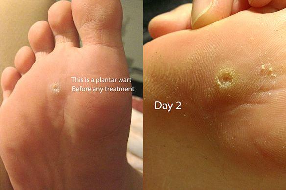 wart under foot treatment que significa el papiloma