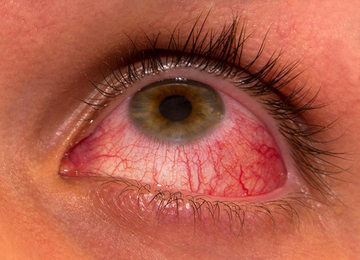 bacterii ochi oxiuros via de transmision