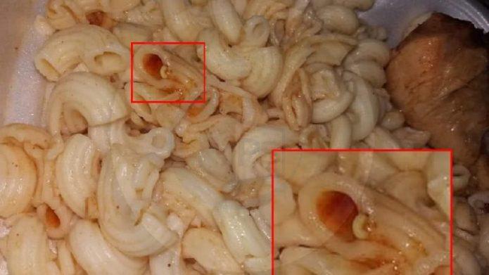 pasta de viermi laryngeal papilloma medical term