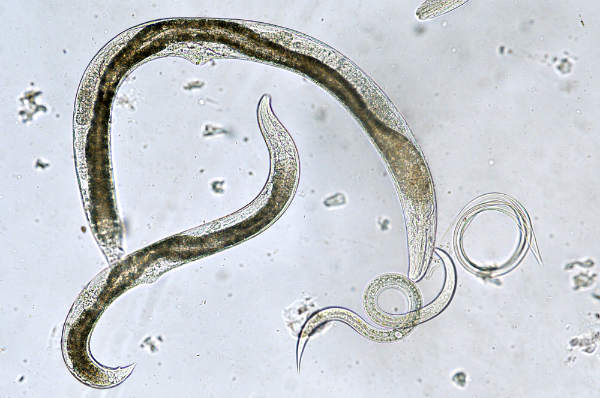 analize paraziti intestinali copii)