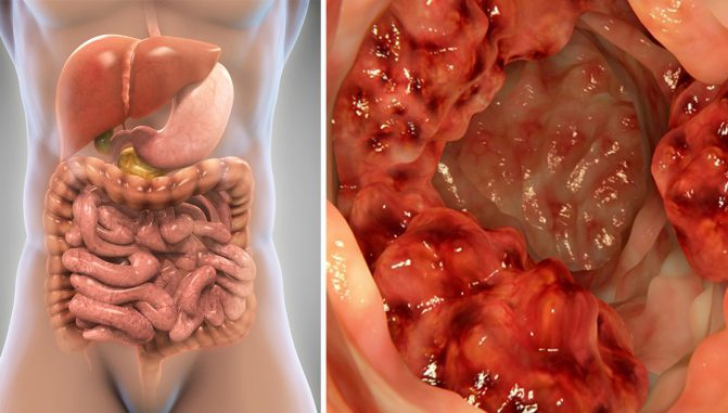 cancer de colon rectal simptome