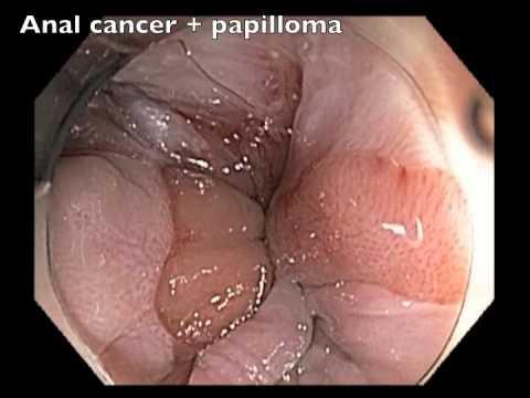 papillomavirus humain lesions