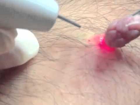 fibroma pendulo papilloma