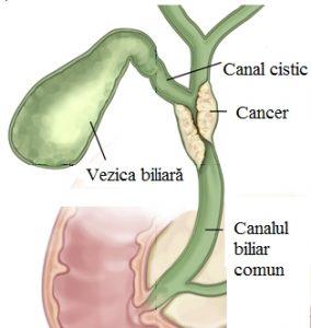 cancer biliar ce este