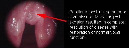 whats laryngeal papillomatosis