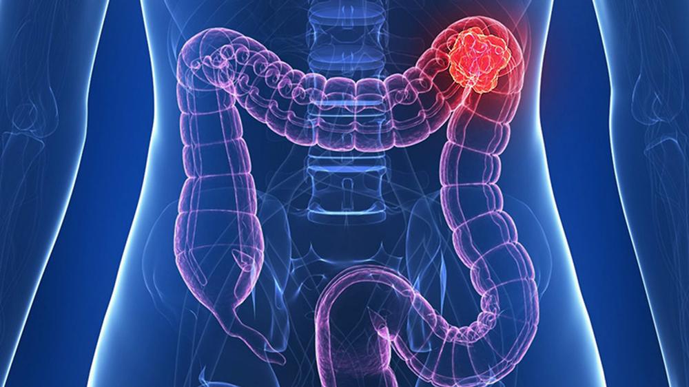 cancerul de colon se vede la ct)