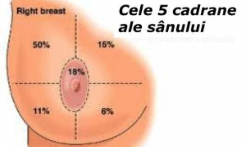 cancer mamar inflamator tratament