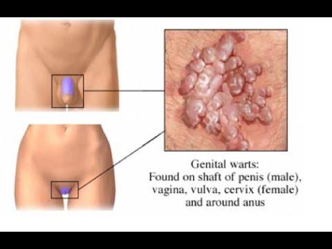 Infectii cutanate date de HPV - Crisderma SRL