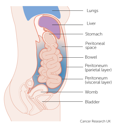 peritoneal cancer neoplasm)