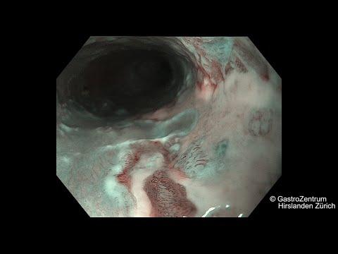 papilloma of esophagus icd 10