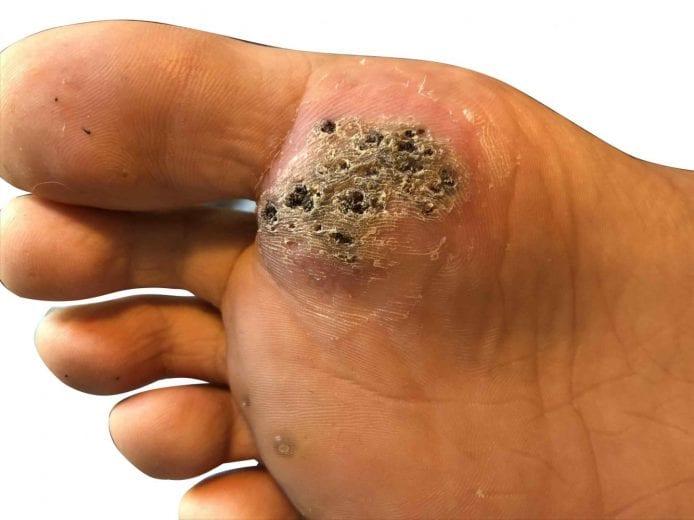 wart vs foot)
