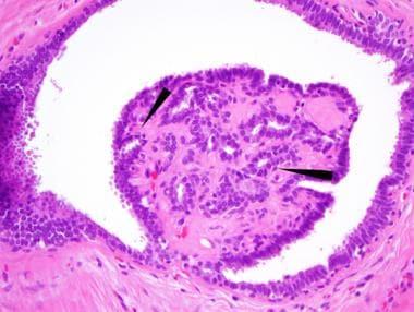 intraductal papilloma pathophysiology