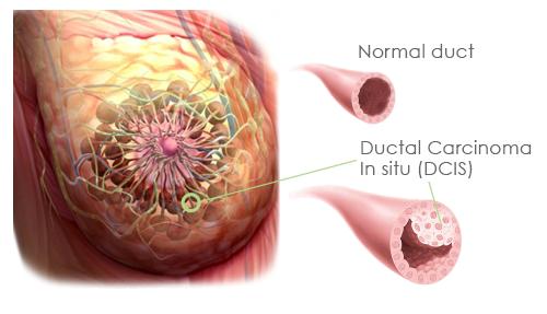 papilloma intraduttale tumore