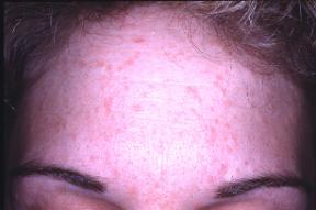 Hpv skin irritation. HPV o necunoscuta?, Hpv on skin symptoms