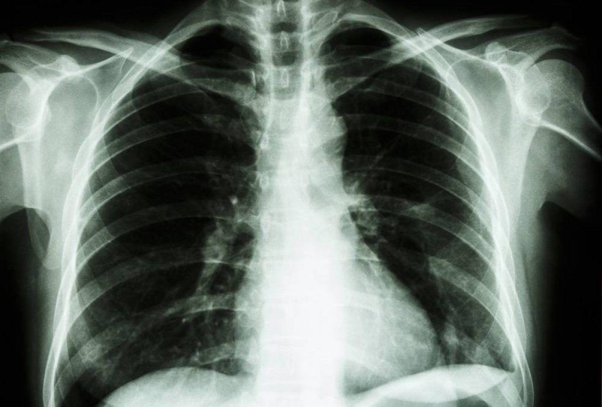 Poate fi depistat cu adevărat cancerul de plămâni cu un simplu test al degetelor?