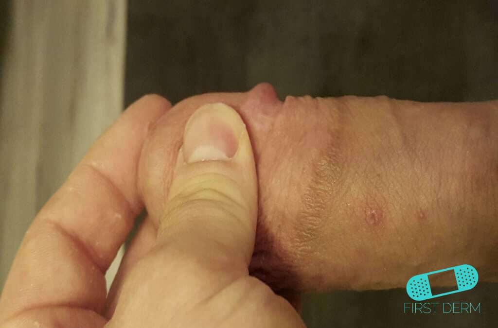 preparate eficiente pentru helminți virusi na racunaru