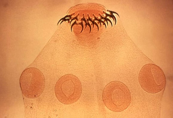 enterobius vermicularis medscape