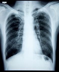 simptome cancer la plamani