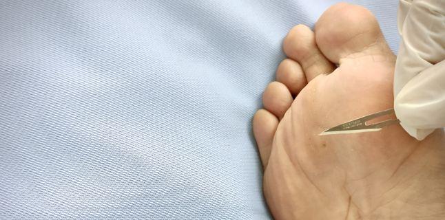 cum să tratezi negii plantari pe picioare