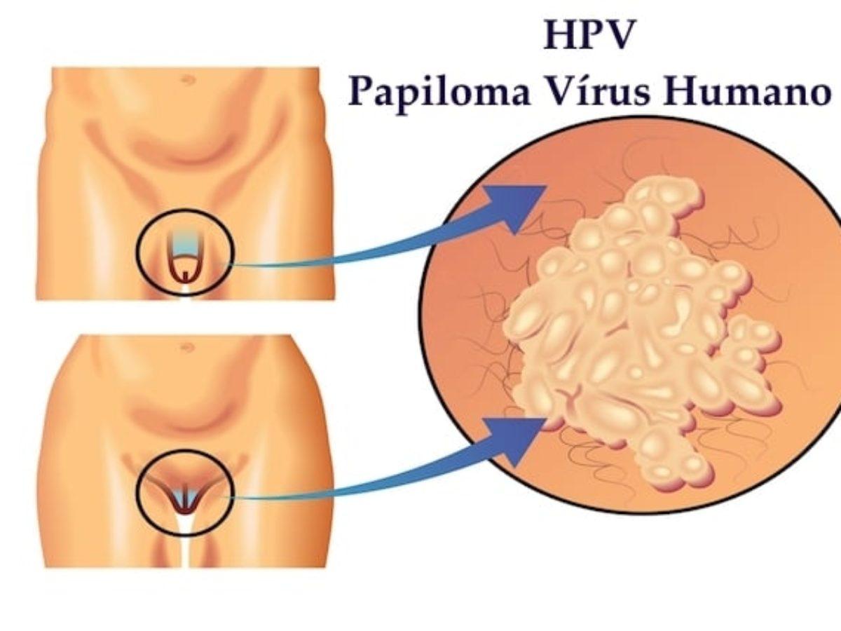 Papillomavirus homme que faire - L'AHCC éradique le papillomavirus humain