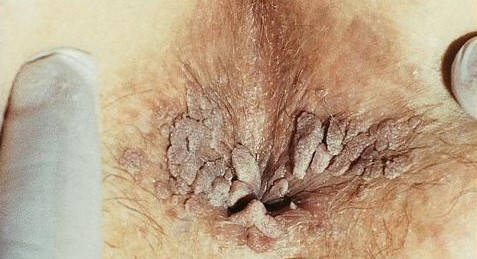 papillomavirus transmissible