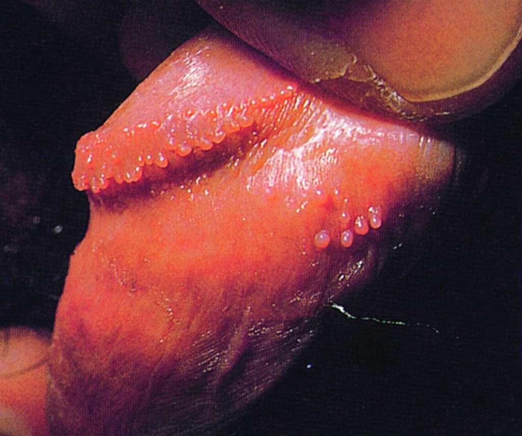 Papilloma hirsutoid. Cancer la sange cauze