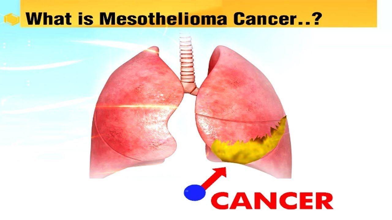 Papillomavirus meaning in telugu Aggressive cancer meaning in telugu, Old buildings essay