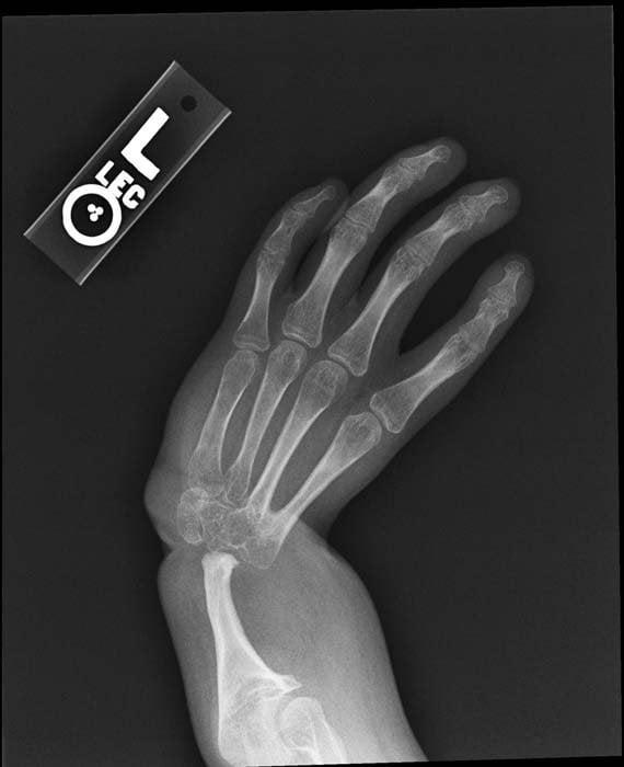 Anemia x ray. Traducere