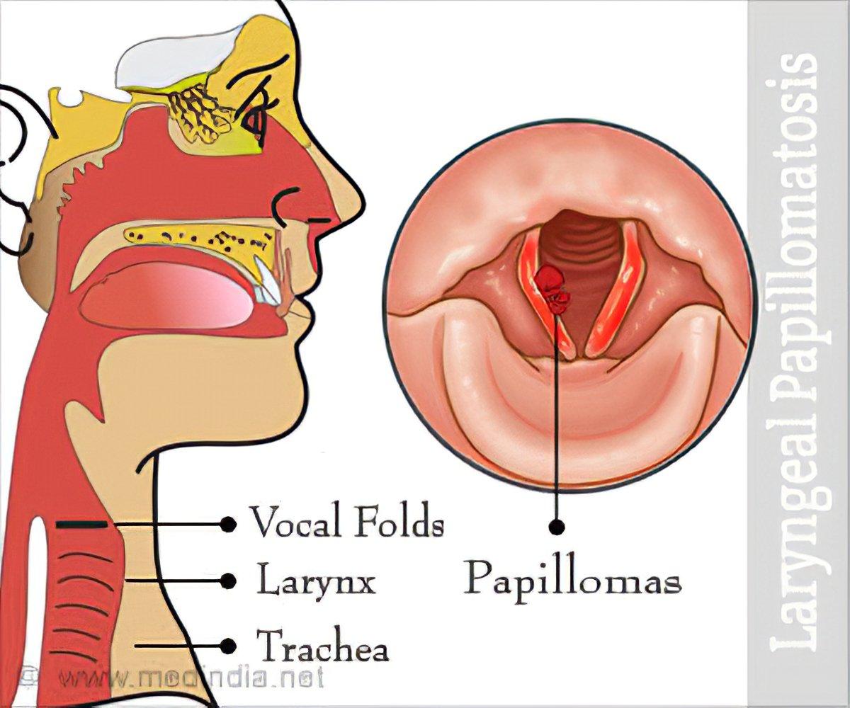 Human papilloma larynx Papilloma of the larynx