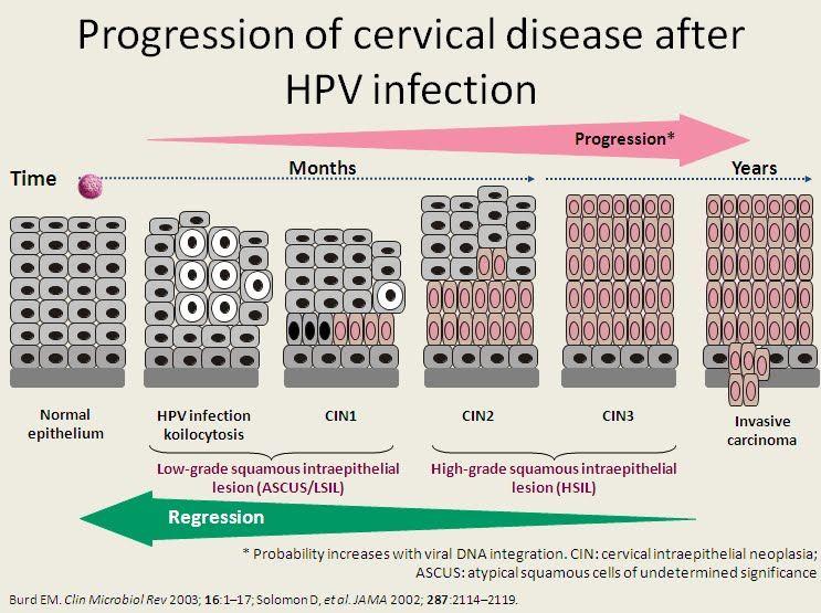 hpv cancer progression)