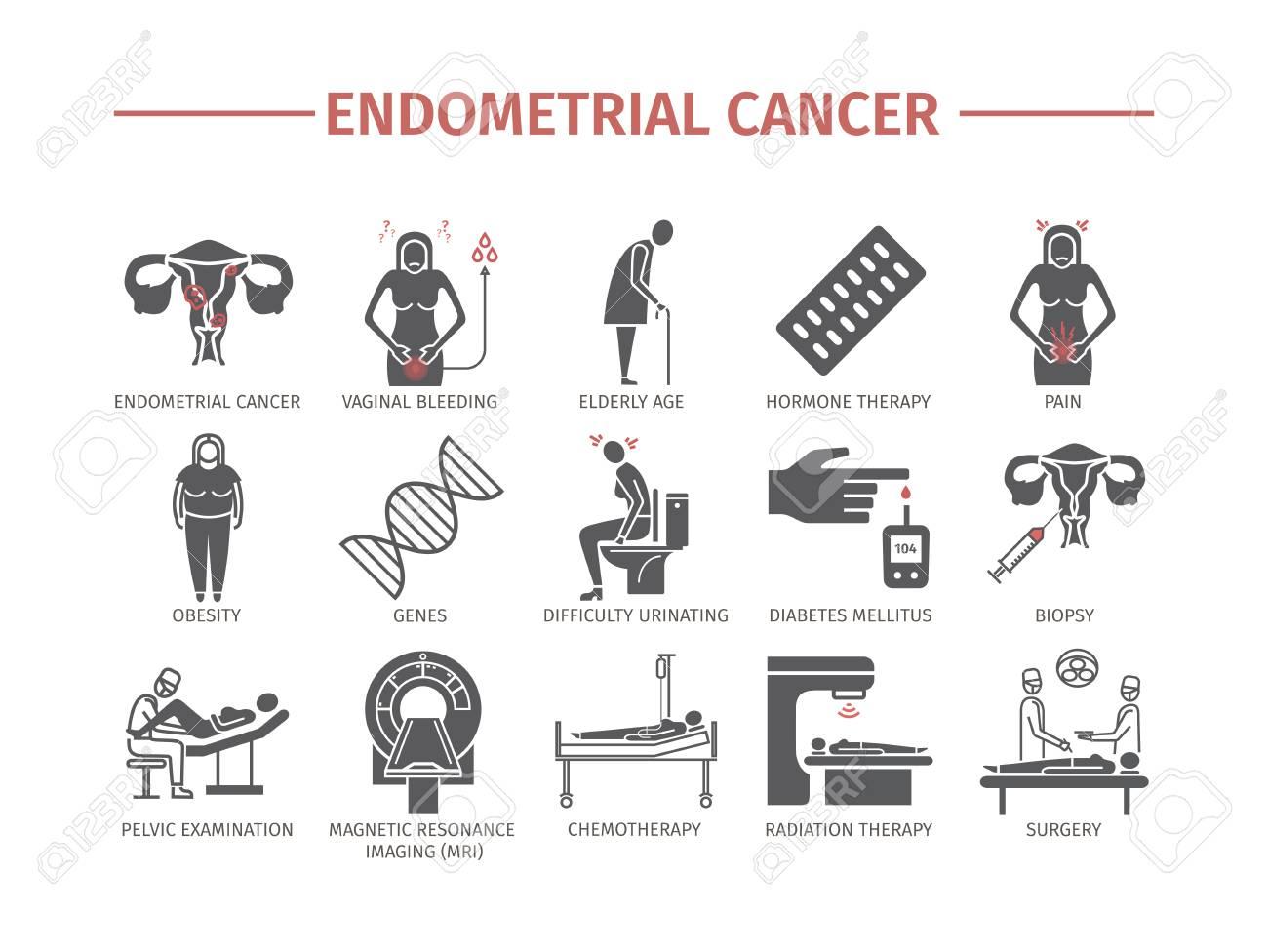 Cancer endometrial, Endometrial cancer radiation therapy, Endometrial cancer radiation therapy