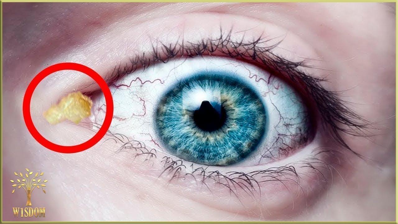 bacterii ochi human papillomavirus and colon cancer