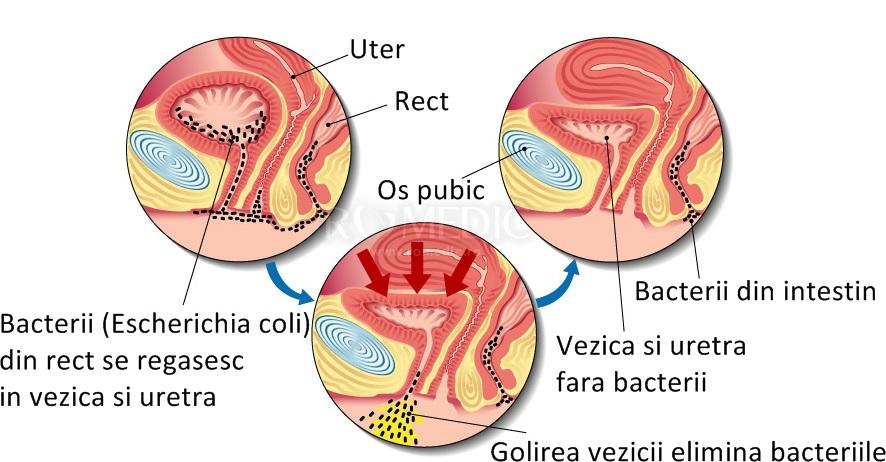 bacterii tract urinar)