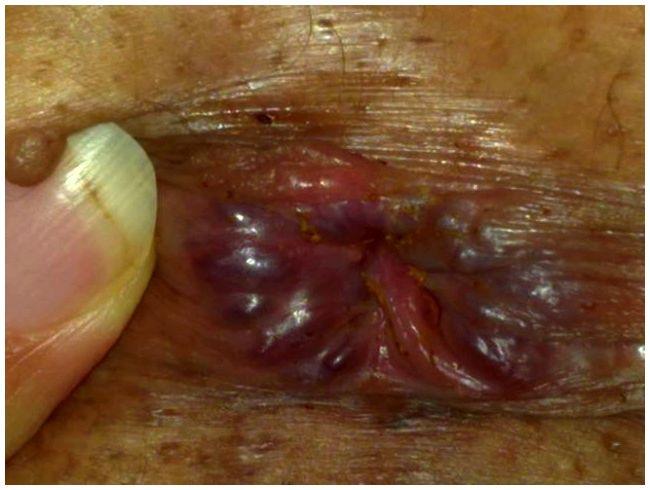 rectal cancer on skin)