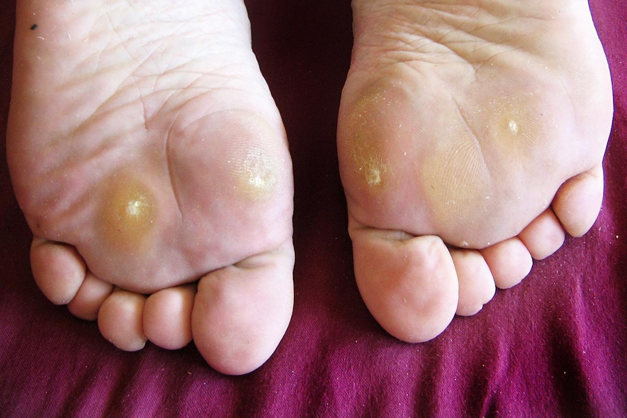 warts foot hurt