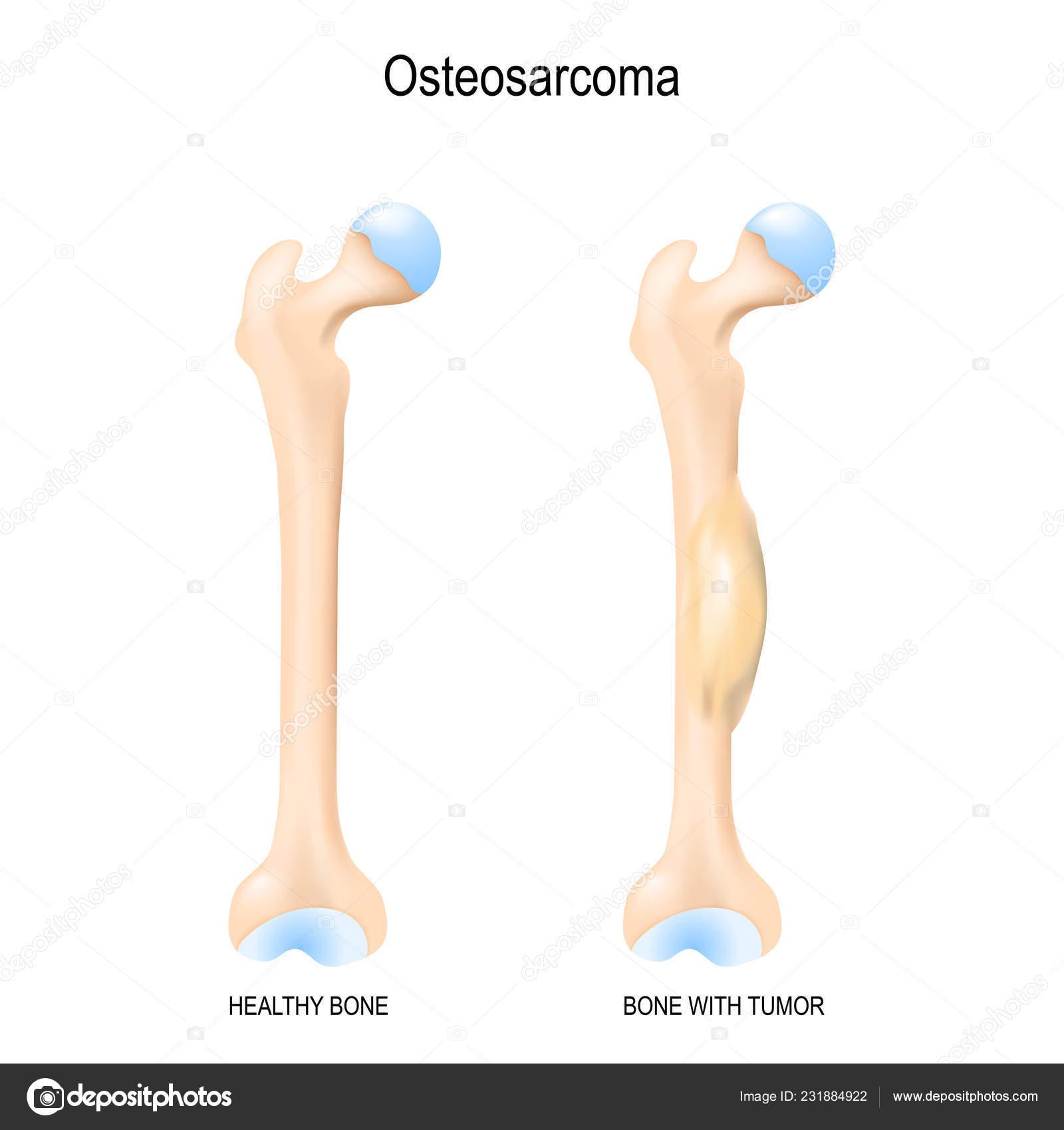 cancer sarcoma maligno)