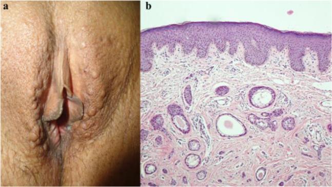 vestibular papillomatosis prevalence