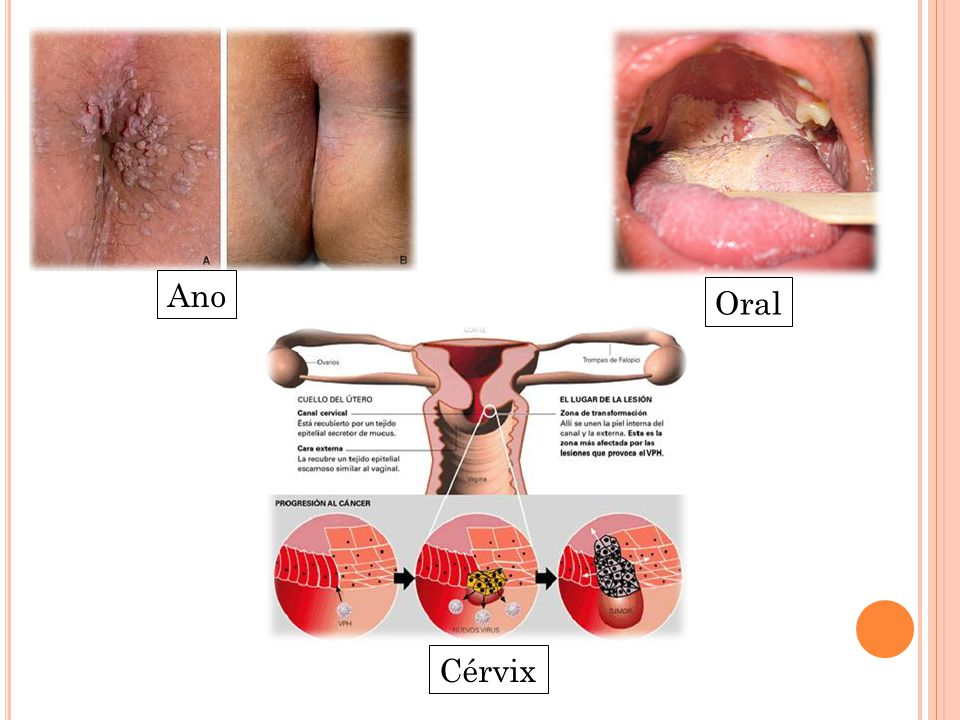 hpv all ano)
