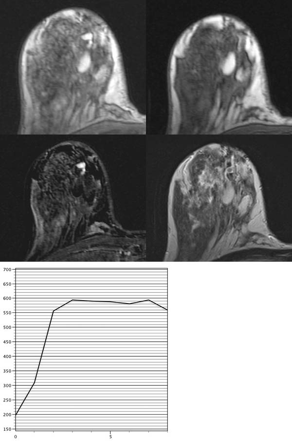 Papillomatosis and mri. What to Expect from a Breast MRI papillary thyroid cancer characteristics