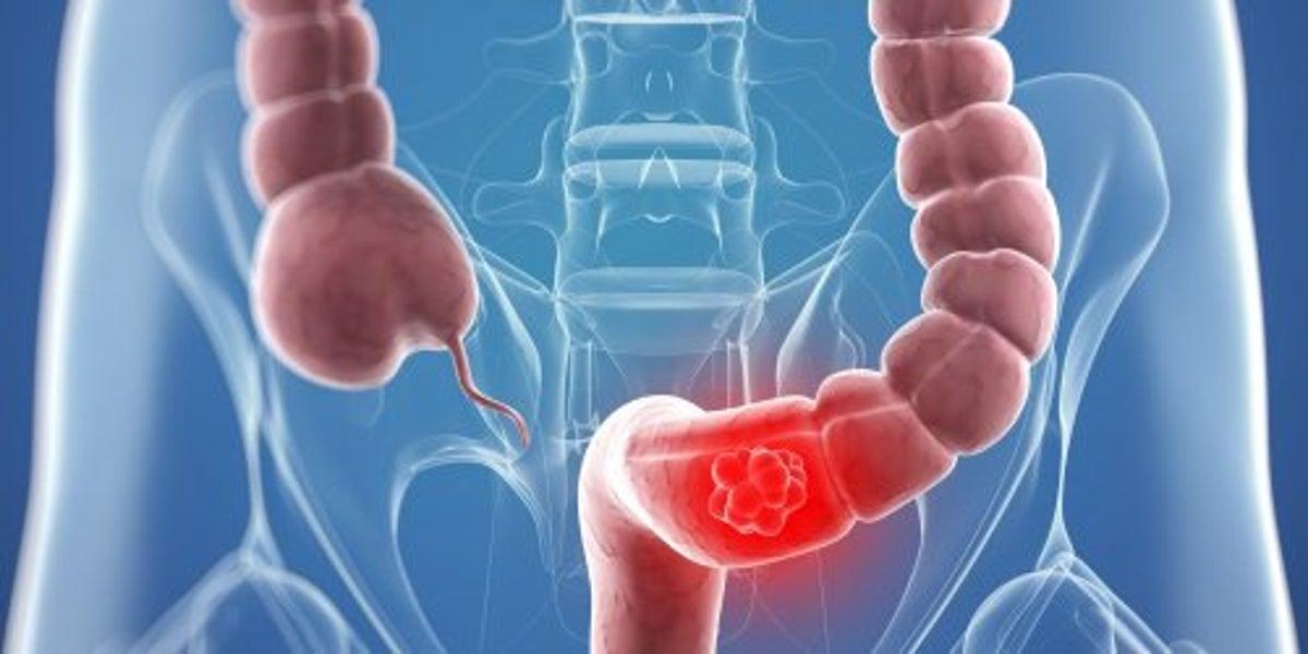 cancer de colon fara simptome