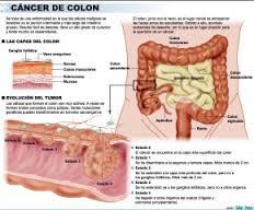cancer de colorectal