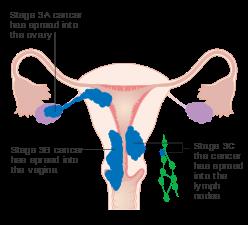 cancer endometrial tratament