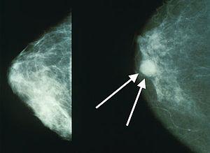 cancer mamar hormonal)
